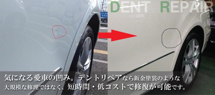 気になる愛車の凹み。デントリペアなら板金塗装のような大規模な修理ではなく、短時間・低コストで修復が可能です